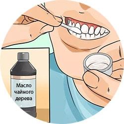 Сколько стоит отбелить зуб у стоматолога