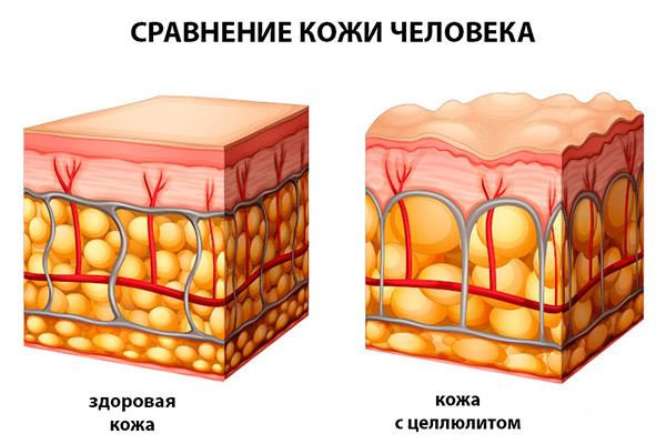 Как выглядит кожа с целлюлитом